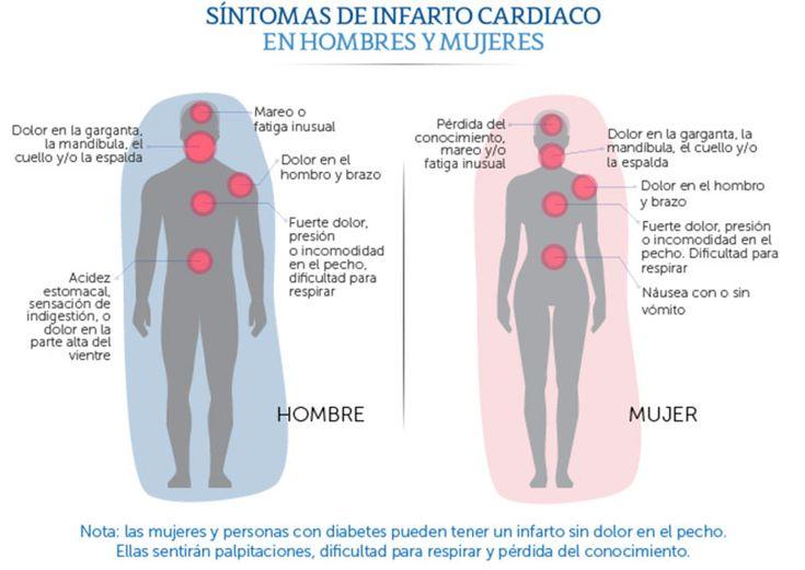 Síntomas de Infarto Cardiaco