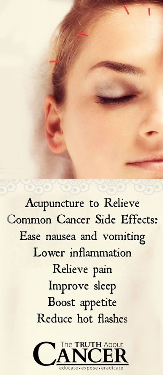 The side effects of traditional cancer treatments can be brutal but you don't have to suffer! Here are some of the incredible benefits of acupuncture. Click on the image to fin out more about this ancient practice. // The Truth About Cancer