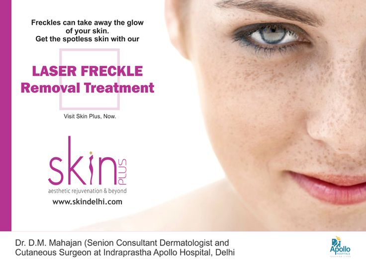 Freckles can take away the glow of your skin. Get the spotless skin with our laser Freckle Removal Treatment, visit Skin Plus, NOW.  #SkinPlus #SkinCare #SkinTreatment #Freckles #FreckleTreatment