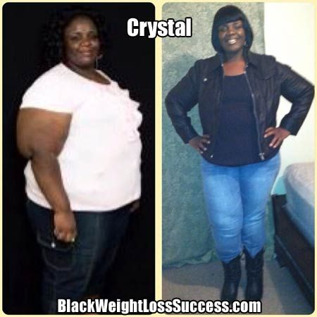 Crystal lost 140 pounds with weight loss surgery