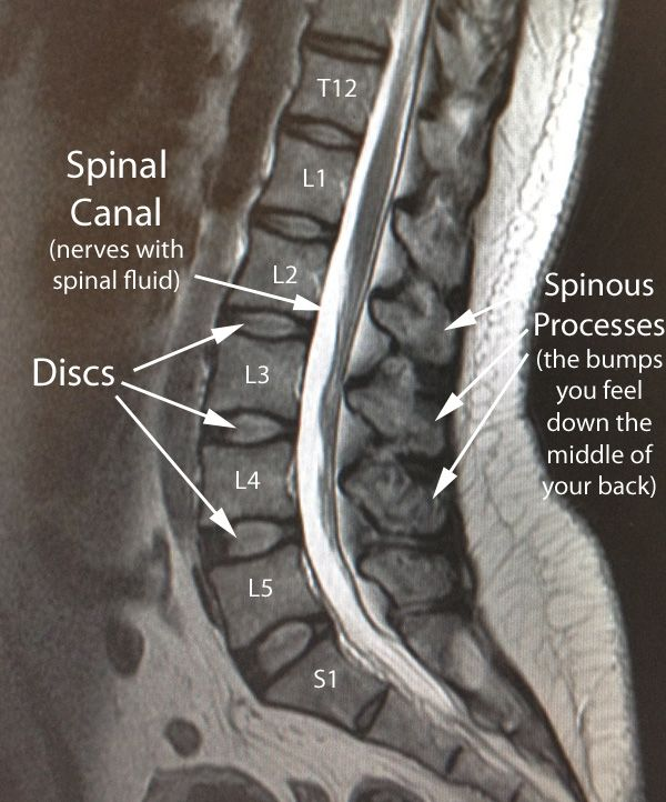 228 best images about mri scans on pinterest | medical ... mri brain spine diagram #2