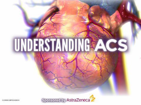 Diagnostiek van het acuut coronair syndroom UITDAGING VOOR HUISARTS EN CARDIOLOOG  Wanneer de precieze aard van pijn op de borst duidelijk is – bijvoorbeeld bij een myocardinfarct met of zonder ST-elevaties, stabiele of instabiele angina pectoris, of bij een alternatieve oorzaak –, is een therapeutisch vervolg goed gedefinieerd (tabel 1). Daarvóór zijn er enkele dilemma's.  http://www.ntvg.nl/artikelen/diagnostiek-van-het-acuut-coronair-syndroom/volledig