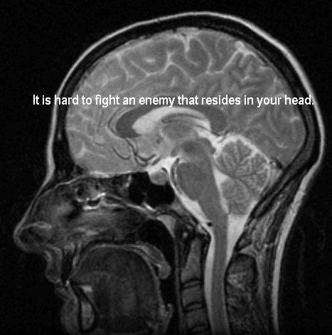 78 best Mental health images on Pinterest   Bipolar ...