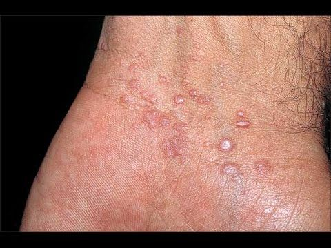 Natural Methods To Get Rid Of Scabies