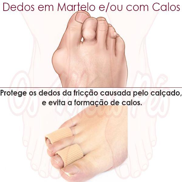 O tubo de gel recortável em forrado a tecido, protege os seus dedos ou calos das agressões causadas pelo calçado. Evita a formação de calos. Reútilizavel