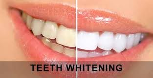 They aren't and do not appear with your gums in a place that is typical. http://shannonstrunk62.jimdo.com/2014/09/17/i-have-inflamed-gums/