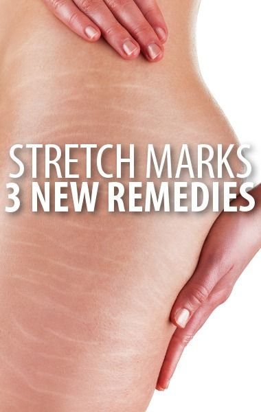 Whether your stretch marks are old or new, Dr Oz shared methods you could use to get relief from them, including Tretinoin Cream and Microdermabrasion. http://www.recapo.com/dr-oz/dr-oz-beauty/dr-oz-tretinoin-cream-vs-retinol-stretch-marks-microdermabrasion/