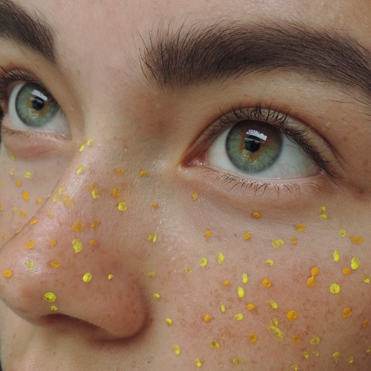 "wanderixg: "" Blue freckles 30 weeks ago and yellow today – how much I've cha…"