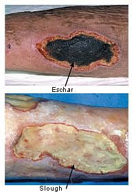 """ Here's a good pic to help you distinguish eschar & slough. Remember, until enough slough and/or eschar is removed to expose the base of the wound, the true depth and stage cannot be determined. However, it will be either a Stage III or IV. """