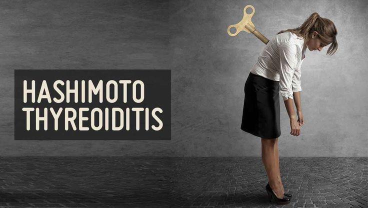 Die häufigste Autoimmunerkrankung erklärt ➤ Was ist Hashimoto Thyreoiditis, wie entsteht die Entzündung der Schilddrüse und gibt es eine Heilung?