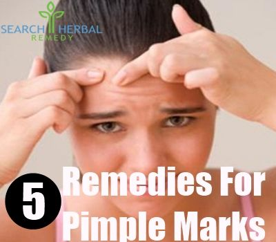 5 Remedies For Pimple Marks