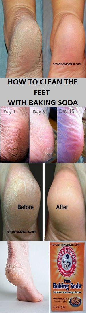 HOW TO CLEAN THE FEET WITH BAKING SODA
