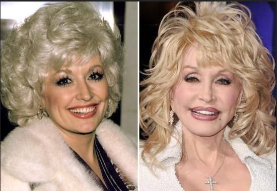 Celebrity Dolly Parton Photo Before And After Plastic Surgery - http://plasticsurgeryclass.com/celebrity-dolly-parton-photo-before-and-after-plastic-surgery/?Pinterest
