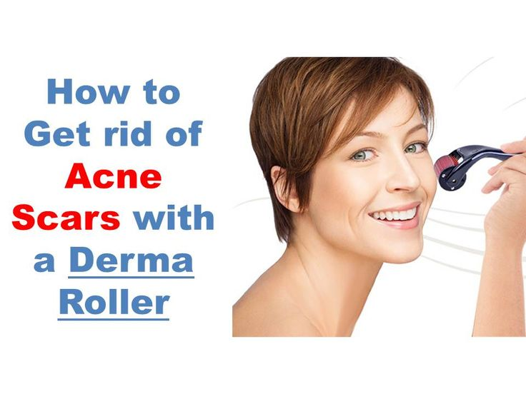 how to get rid of acne scabs in one day