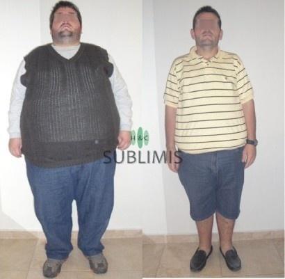 Cirugia de la Obesidad, antes y despues. Operacion realizada en Cordoba, Argentina por medicos de Sublimis.