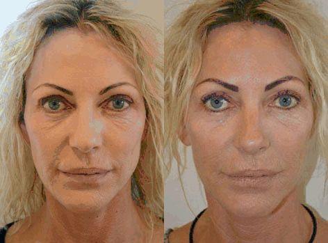 Hudforyngelse med Fractional Laser Skinresurfacing