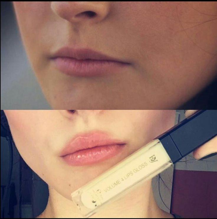 Volume for Lips https://ladyskosmetikinstitut.juchheim-methode.de/shop/kosmetik/volume-4-lips-gloss-farblos/