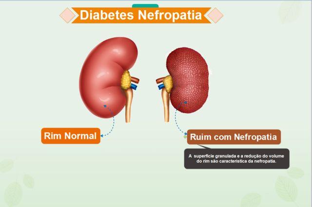 A diabetes nefropatia ou seja nefropatia diabética. Apos 15 anos de diabetes tipo 1, aproximadamente 40% dos pacientes. Desenvolvem a nefropatia diabética, uma doença renal que diminui o ritmo do funcionamento dos rins, podendo chegar até a falência completa.