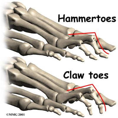 Claw and hammer toes