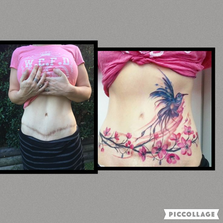 36 best to do or not to do images on pinterest tummy for Tattoo after surgery