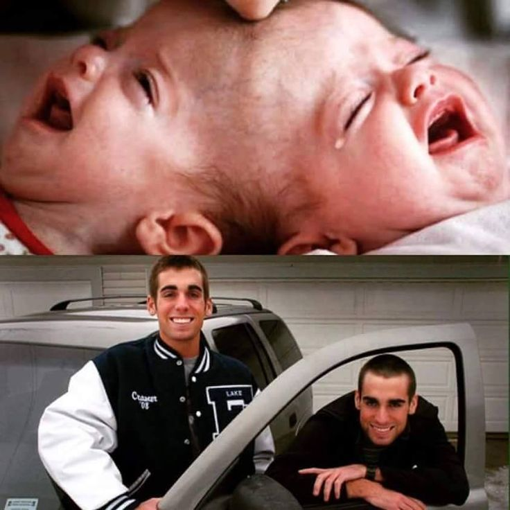 The conjoined twins that Dr. Ben Carson separated in 1987. Phenomenal! They call him the doctor with the healing hands.