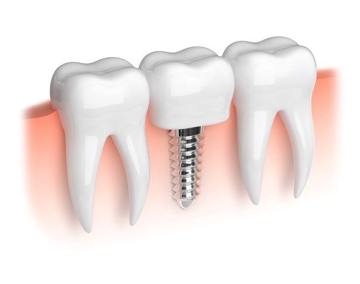 Average Costs Of Dental Implants  Getting Better Prices