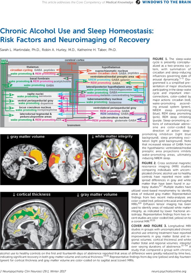 Chronic Alcohol Use and Sleep Homeostasis: Risk Factors and Neuroimaging of Recovery