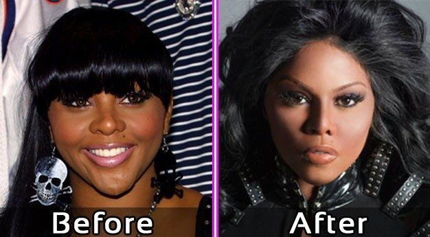 Lil Kim Plastic Surgery Pics Before After #celebsundertheknife #celebs #celebrity #plasticsurgery #celebritysurgery #facelift #lilkim