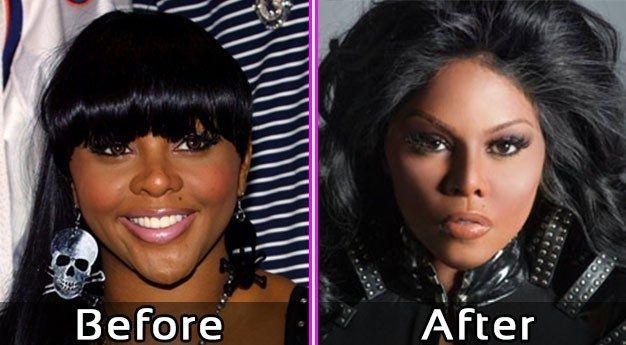 Lil Kim Plastic Surgery Pics Before After #celebsundertheknife #celebs #celebrity #plasticsurgery #celebritysurgery #facelift #lilkim