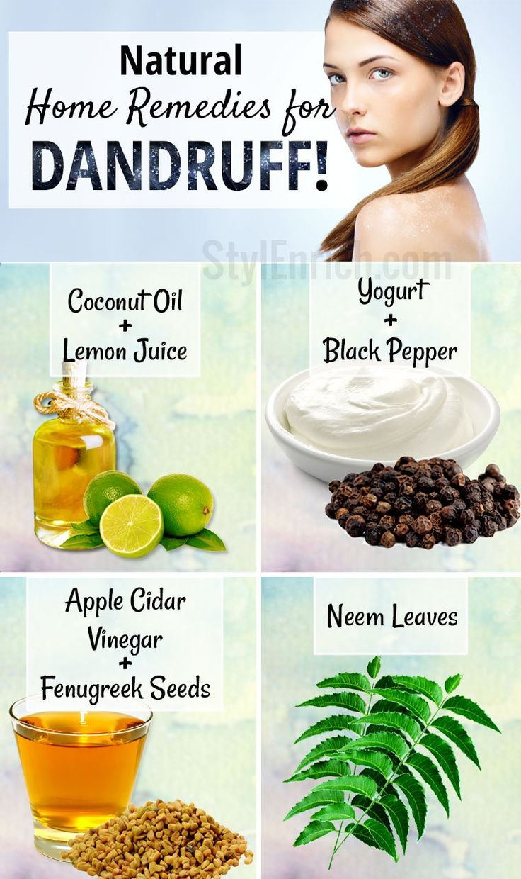 Natural Home Remedies For Dandruff Home Remedies For Dandruff Dandruff Remedy Baking Soda Shampoo