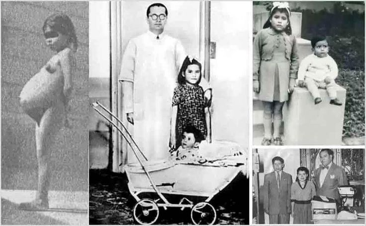 Lina Medina, born in Paurange, Peru in 1933 had a condition known as precocious puberty. She was only 5 years 8 months when she gave birth. At five years of age, Lina Medina is the