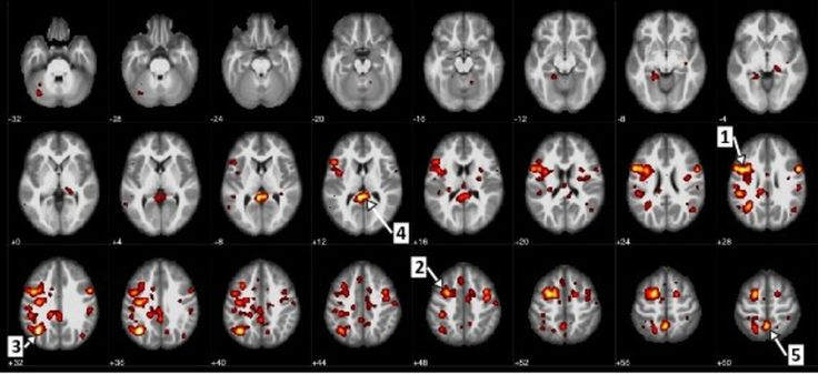 Here, we see the regions of the brain that showed a statistically significant difference between patients with schizophrenia and patients without it. For example, arrow 1 identifies the precentral gyrus, or the motor cortex, and arrow 5 marks the precuneus, which involves processing visual information. (CNW Group/IBM Canada Ltd.)
