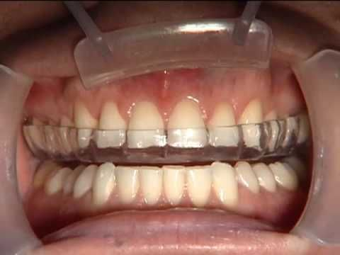Clinical Dental Video: Tutorial - Bite Splint Delivery.  Presented by Glidewell Laboratories.  #dental videos  #clinical videos