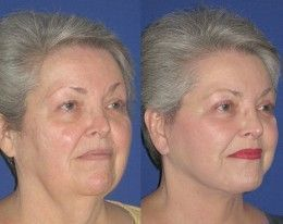 Before and After Facelift Gallery – – –