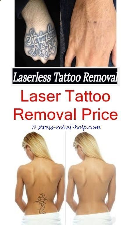 Tattoo Machine Tattoo Removal Houston Tx How Soon For Tattoo