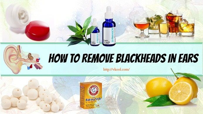 how to get rid of blackheads in toddlers ears