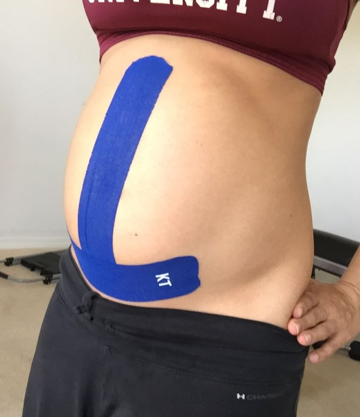 Kinesio taping relieves pain in pregnancy (pelvis, lower back, abdominal, even sciatic).