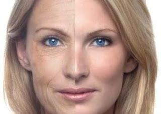 Look Younger in 10 Days - Natural Ways to Remove Wrinkles