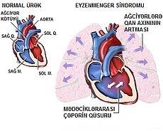 Eisenmenger syndrome explained    http://en.wikipedia.org/wiki/Eisenmenger's_syndrome