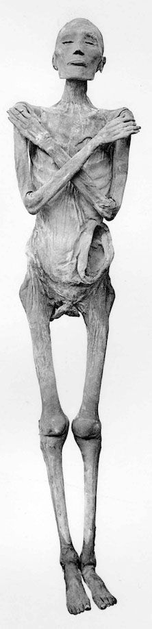 The mummy of Ramesses V