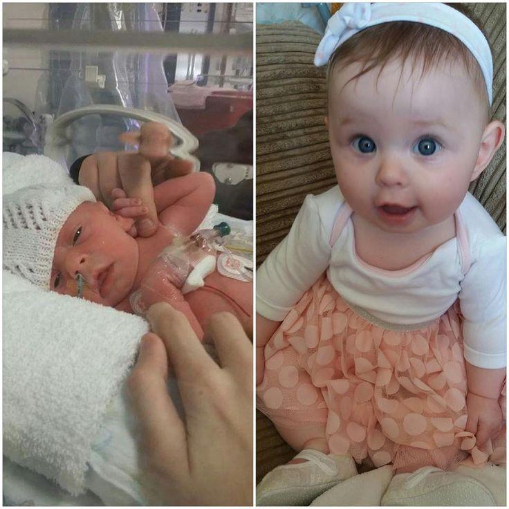 Baby Born 36 Week Old