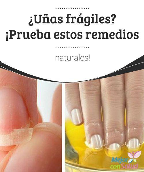 ¿Uñas frágiles? ¡Prueba estos remedios naturales! Las uñas frágiles pueden ser resultado de un mal cuidado, pero también nos pueden estar indicando alguna dolencia interna. Ante la menor duda, conviene consultar con el especialista