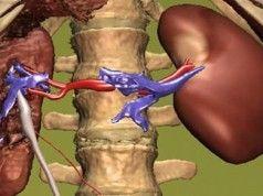 10 běžných zlozvyků, které poškozují vaše ledviny