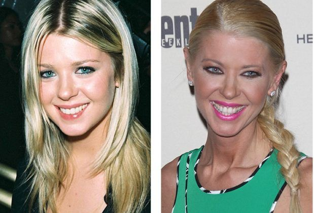 Tara Reid, before the others, was carried away by Botox, which, by the way, does not save her from brightly expressed wrinkles around her eyes. The actress also changed the shape of her nose and increased her breasts. Alas, the result of all these efforts can hardly be considered positive.