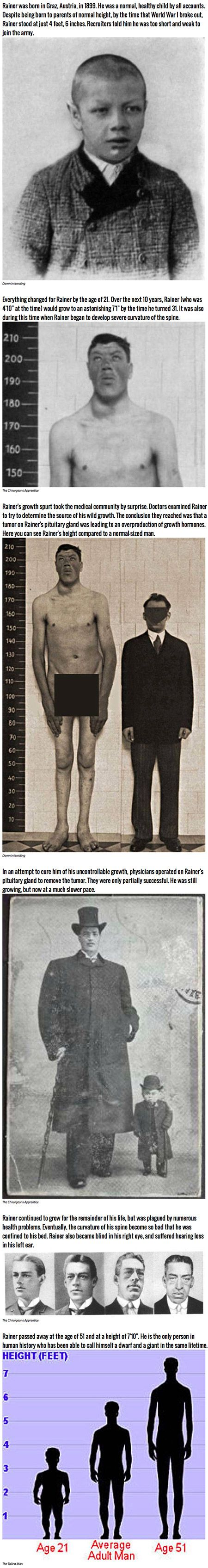 It is genuinely rare these days to come across a so-called medical miracle. Yet back in the early 1900s, the case of Adam Rainers strange and miraculous growth stunned physicians. Rainer is the only person in recorded history to have been both legally a dwarf and a giant.
