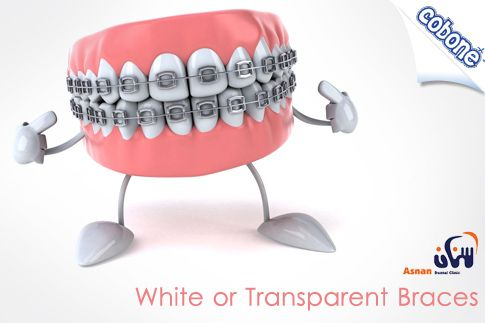 Align your teeth with the choice of the barely visible white or transparent braces applied at Asnan Dental Clinic for EGP 2799 (Value EGP 7500) – Install brackets, change wires and install O ties!