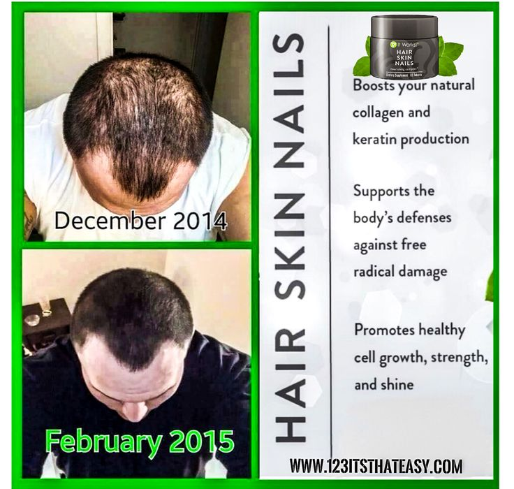 Awesome pic of our HSN in action. This guy got some amazing results.  •Boost your natural collagen and keratin production.  •Supports the body's defenses against free radical damage  •Moisturizes while enhancing skin's elasticity and flexibility  •promotes healthy cell growth,strength, and shine Works great for both women and men and is made with all natural ingredients. If you want longer stronger hair. Better nails and more vibrant skin. You need to give out HSN a shot