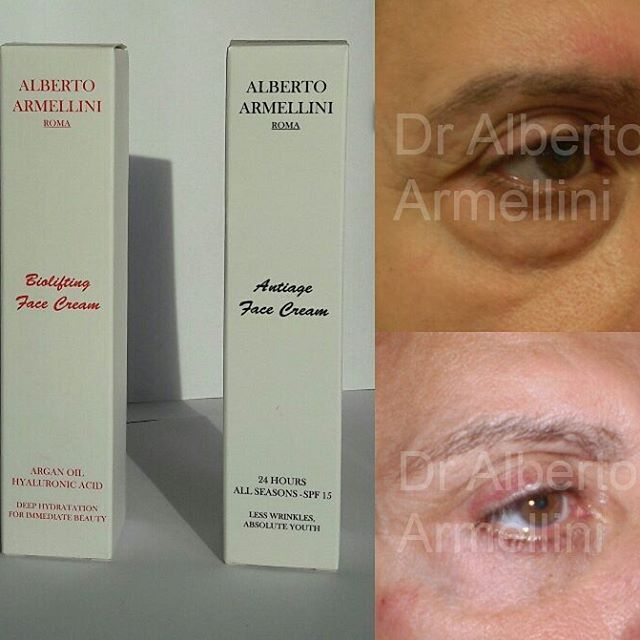 . LIFTING 3D lower eyelid (by Dr.Alberto Armellini ) with post chirurgical optimization through daily application of the Biolifting Face Cream and Antiage Face Cream of Alberto Armellini Beauty & Skin Health.  LIFTING 3D palpebra inferiore (by Dr. Alberto Armellini) con ottimizzazione post chirurgica mediante applicazione quotidiana di Biolifting Face Cream e Antiage Face Cream della Alberto Armellini Beauty & Skin Health  #albertoarmellini #lifting #nofilter #chirurgiaplastica…