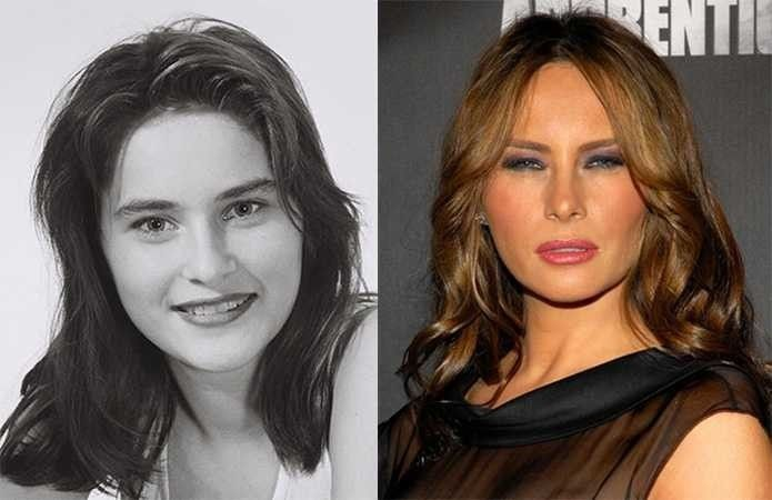 Finally The Reason Melania Trump Squints Plastic Surgery Gone Wrong Trump Hair Celebrity Plastic Surgery
