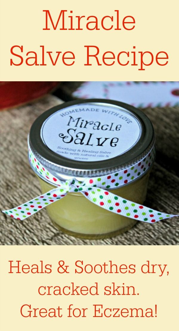 Miracle Salve Recipe for Hands, Face & Body (great for eczema!) from Primally Inspired ~ 3 TBL Beeswax, 1/4 cup Coconut Oil, 1/2 Avocado Oil, 2 TBL Shea Butter, 20 drops essential oils. (Lavender, Bergamot, Geranium, Roman Chamomile)
